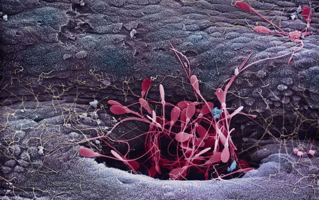 Цветное микроизображение здоровых сперматозоидов, выходящих из семенного канальца, полученное с помощью растрового электронного микроскопа. Фото: Innerspace Imaging/Science Photo Library